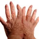 Что такое полиостеоартроз