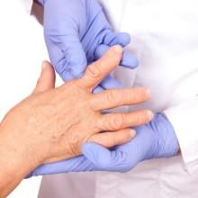 Симптомы и лечение деформации мелких суставов рук