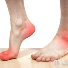 Артроз стопы симптомы и лечение народными средствами