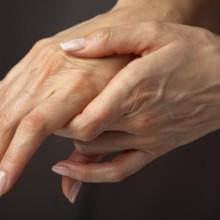 Опухают суставы пальцев рук - что делать