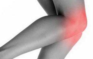 Деформирующий артроз коленного сустава 2 степени