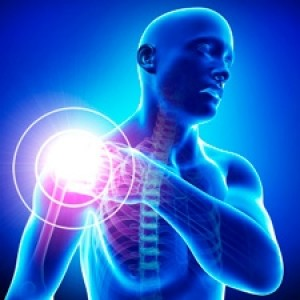 Защемление нерва плеча