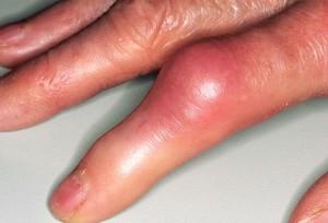 Воспаление суставов пальцев операция на плечевом суставе в ростове