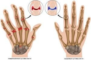 Деформирующий остеоратроз