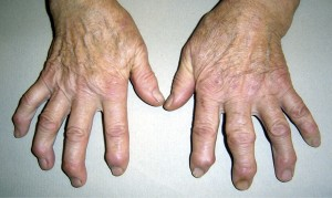 Шишка на пальце руки - симптомы, лечение