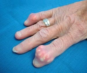 При подагрическом артрите откладываются кристаллы мочевой кислоты