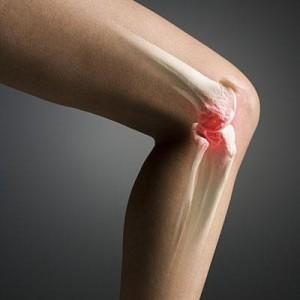 Артроз коленного сустава (гонартроз) 3 степени