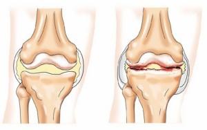 Остеоартроз - симптомы, признаки и лечение