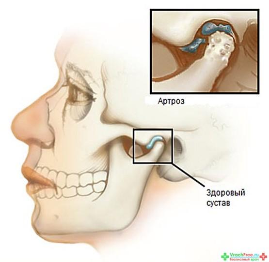 Лечение артроза височно-нижнечелюстного сустава