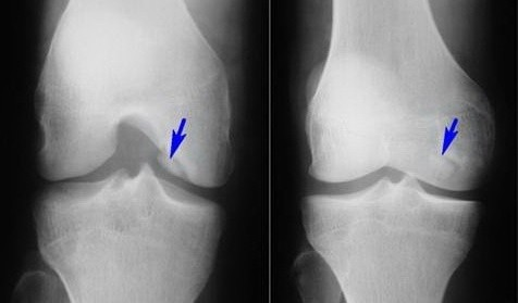 Артроз коленного сустава 2 стадия лечение лечение суставов позвоночника в омске