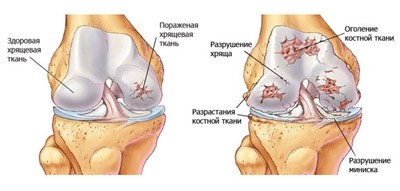 Болят суставы ноги протезы коленных суставов цена