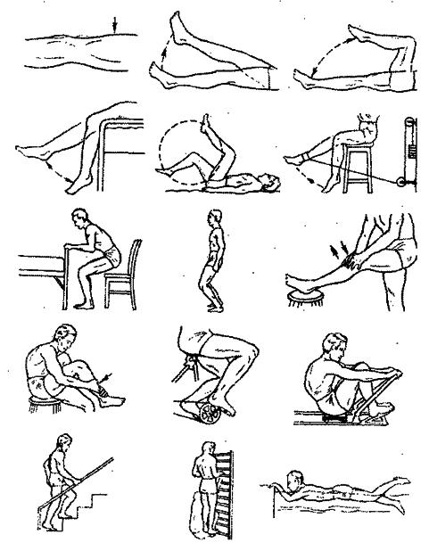 Гимнастика для коленных суставов сустав крювелье лечение