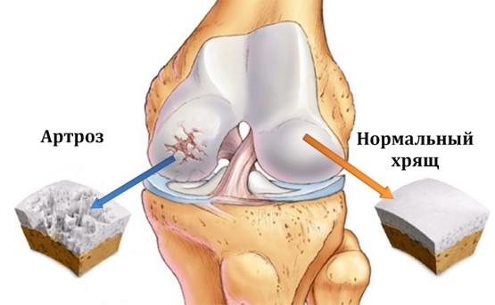 Заболевания плечевого сустава отчего болят суставы и мышцы