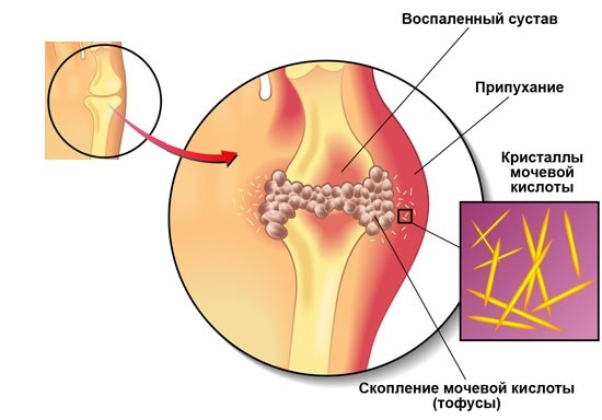 a description of arthritis which means inflammation of the joints