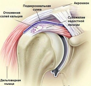 Изображение - Хрустят суставы плеча причины cff297969a091a344480d859914e1166