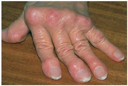 Искривление пальцев рук причины