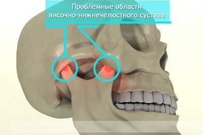 Артрит челюстно лицевого сустава