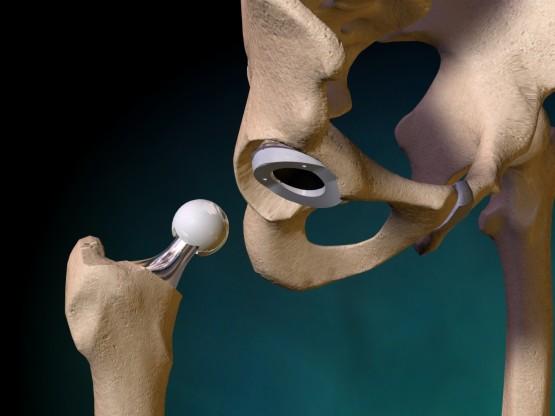 Артроз плечевого сустава причины симптомы лечение и гимнастика (фото)