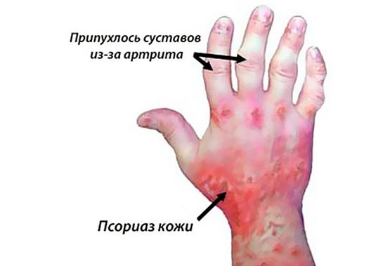 Травы при псориатическом артрите