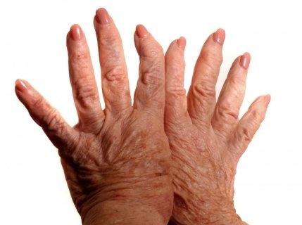 Полиостеоартроз код по мкб 10 — Сайт о лечении заболеваний суставов