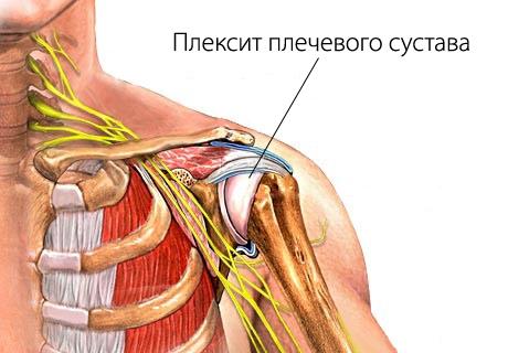Неврит плечевого нерва (воспаление): симптомы и лечение