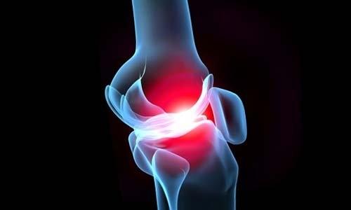 Вирусный артрит: симптомы и лечение заболевания